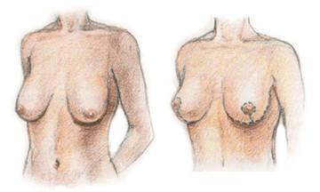Красивое тело после родов