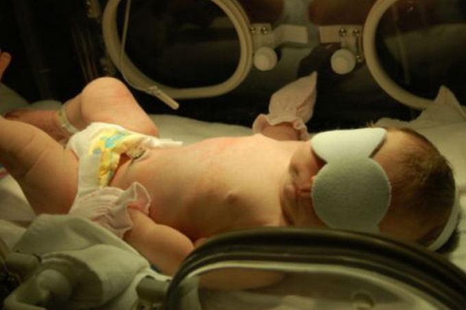 Фототерапия хорошо лечит, если появилась желтушка у новорожденных