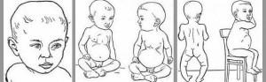 Выраженные признаки рахита у ребенка