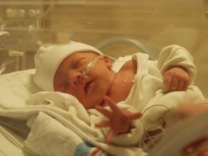 Асфиксия новорожденных легкая степень