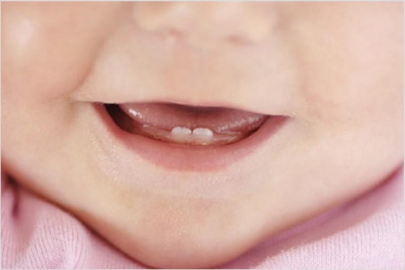 Когда появляются первые зубы у новорожденных