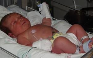 Интенсивная терапия при врожденном цитомегаловирусе