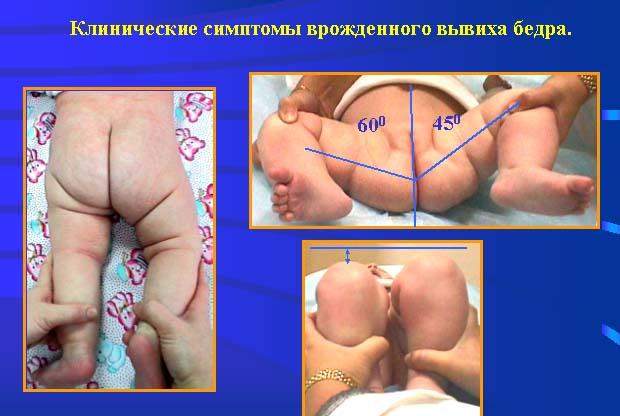 Симптомы дисплазии у новорожденных
