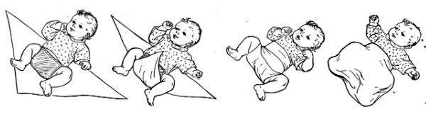 Широкое пеленание при дисплазии у малыша