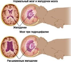 Внутричерепное давлене у новорожденных
