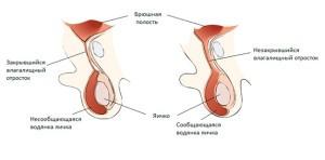 Гидроцеле у грудничков