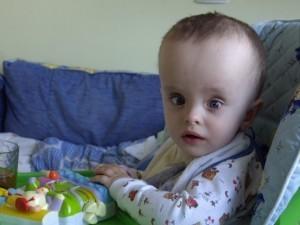 Косоглазие при гидроцефалии у младенцев