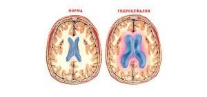Нормальный мозг и гидроцефалия