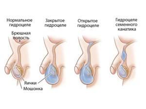Осложнение водянки яичек у новорожденных