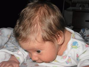 Потеет голова у новрожденного