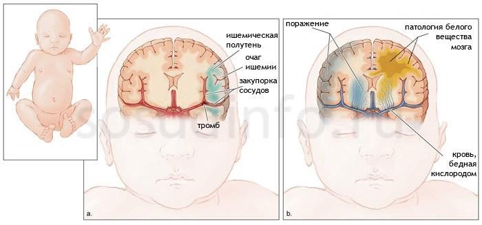 Церебральная ишемия у грудничков из-за осложнений беременности