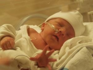 Реанимация новорожденного при сепсисе