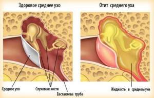 Отит у грудничка и здоровое ухо