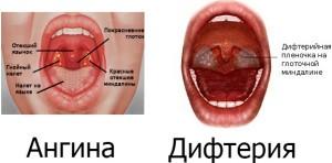 Ангина и дифтерия у новорожденного