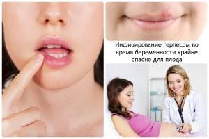 Герпес на губе во время беременности
