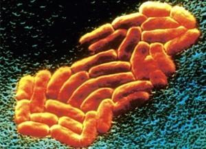 Клебсиелла у новорожденных под микроскопом