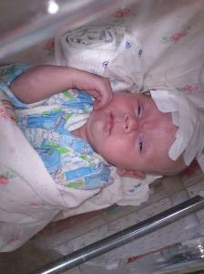 Лечение ДЦП у новорожденных