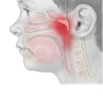 kak-vyglyadyat-adenoidy-u-novorozhdennyx