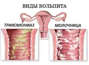 Какие выделения могут быть при молочнице