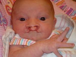 Симптомы заячьей губы у новорожденных