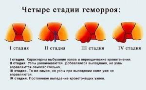 stadii-gemorroya-pri-beremennosti