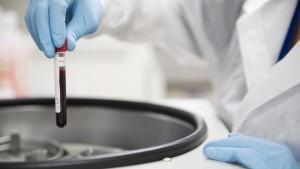 Гемофилия у новорожденных определяется по анализам крови
