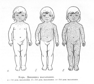 Корь у грудничков делится на стадии