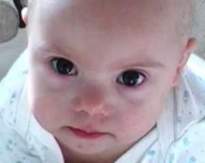 Признаки синдрома Дауна у новорожденных очевидны