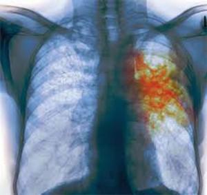 Туберкулез и беременность чаще проявляется у женщин старшего возраста