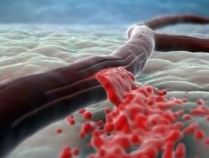 Гемофилия у новорожденных способствует возникновению осложнений