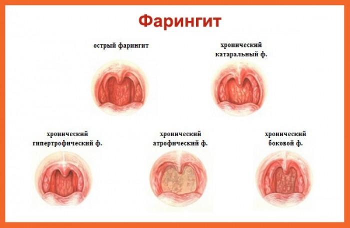 Фарингит у детей - формы, симптомы и лечение фото
