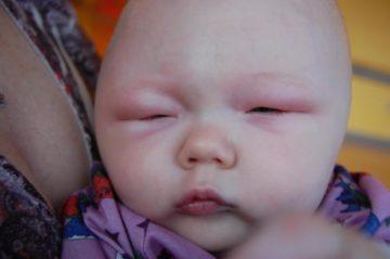 Отек Квинке у новорожденного фото отражается на глазах