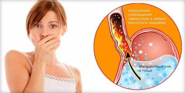Причины одновременной отрыжки и изжоги при беременности