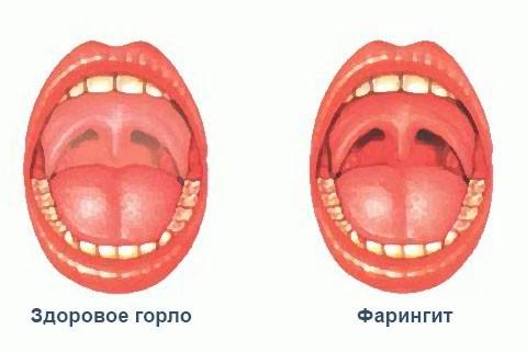 Как быстро сделать красным горло