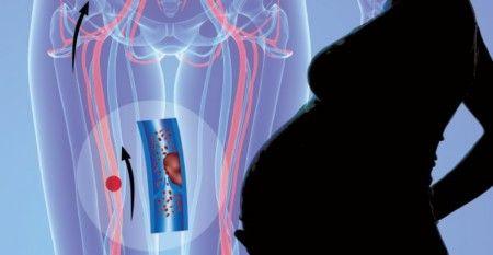 Кардиомагнил при беременности 2 триместр и 3 триместр способствует разжижению крови