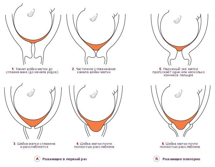 Предвестники родов у повторнородящих и первородящих проявляются как раскрытие шейки матки
