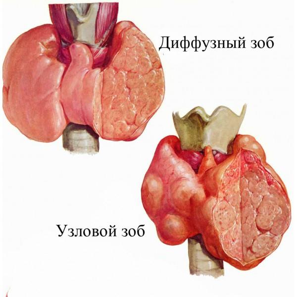 Эндокринные заболевания у новорожденных диффузный зоб