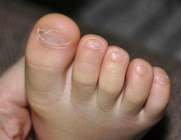 Грибок ногтя у грудничка сопровождается изменением цвета пластины и ее формы