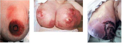 Показания, когда мастит перешел в стадию, подвергающуюся лечению при помощи хирургического вмешательства