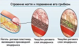 Следующим образом прогрессирует грибок ногтя у грудничка