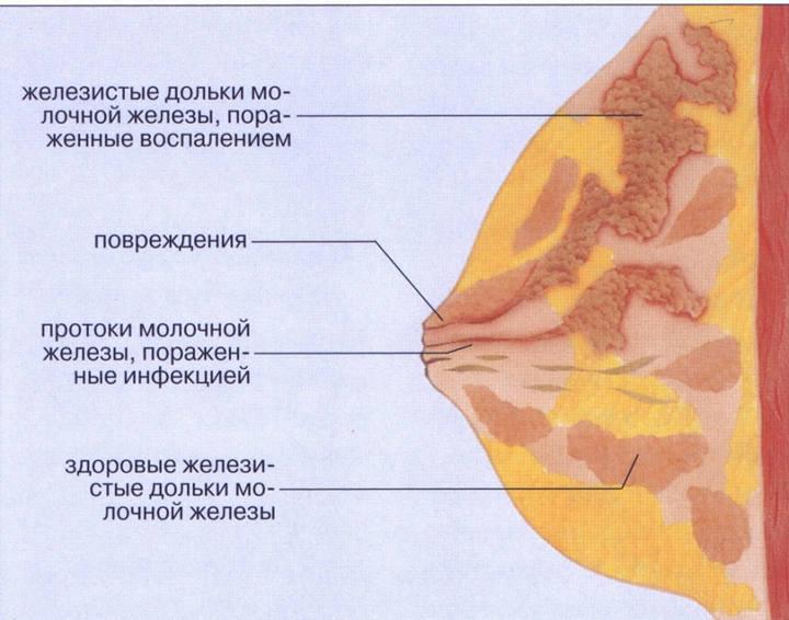 Мастит при грудном вскармливании травмирует и осложняет процесс кормлений