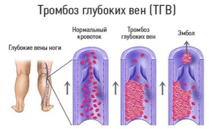 Как отличаются тромбозы у новорожденных с нормальным кровотоком