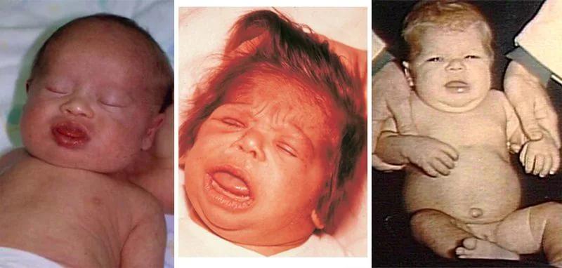Диффузный зоб у новорожденных отличается выпячиванием языка малыша, как на фото