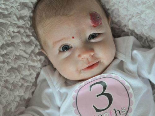 Гемангиома у новорожденных на лицевой части в дальнейшем предоставляет психологический дискомфорт, поэтому большие новообразования, как на фото нужно лечить