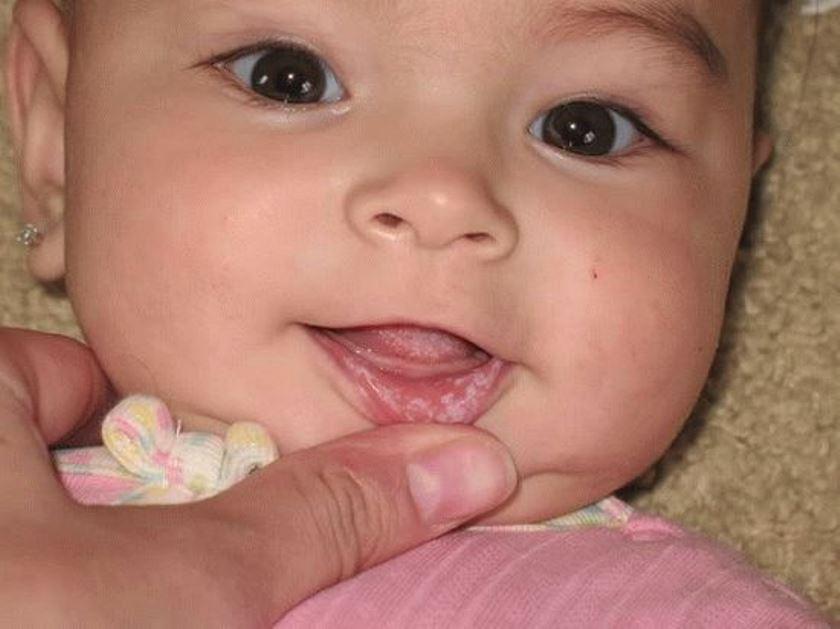Белесый налет на внутренней стороне губ у грудничка тоже говорит о наличии грибка в ротовой полости