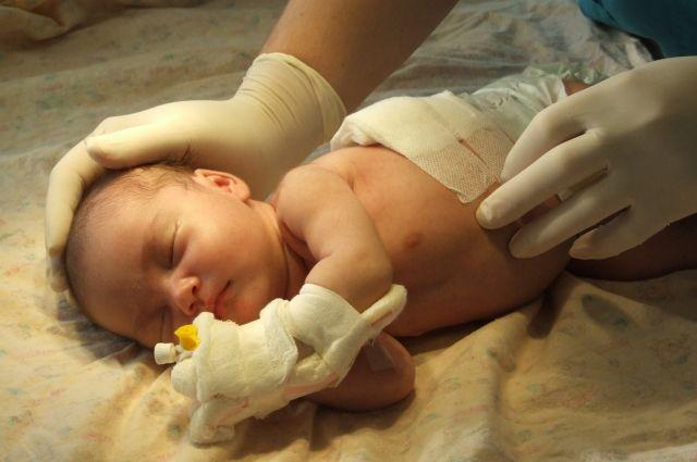 Определить диафрагмальную грыжу у новорожденных можно путем пальпации и по выпуклости грудного отдела