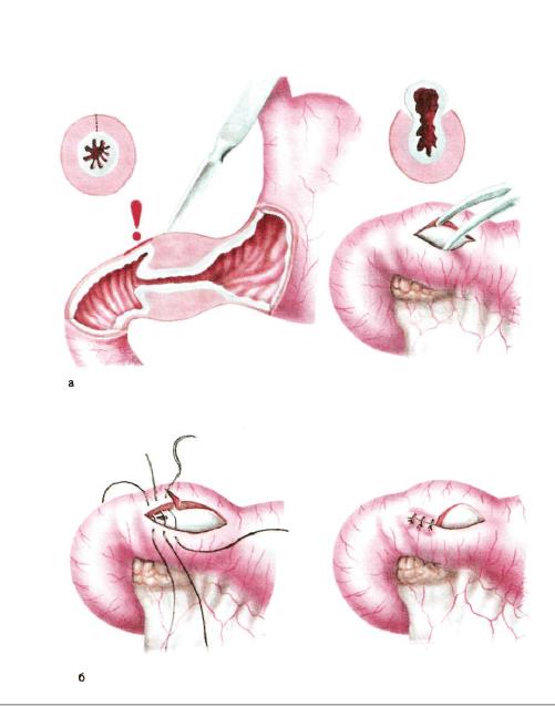 Полиростеноз у новорожденных лечится хирургически
