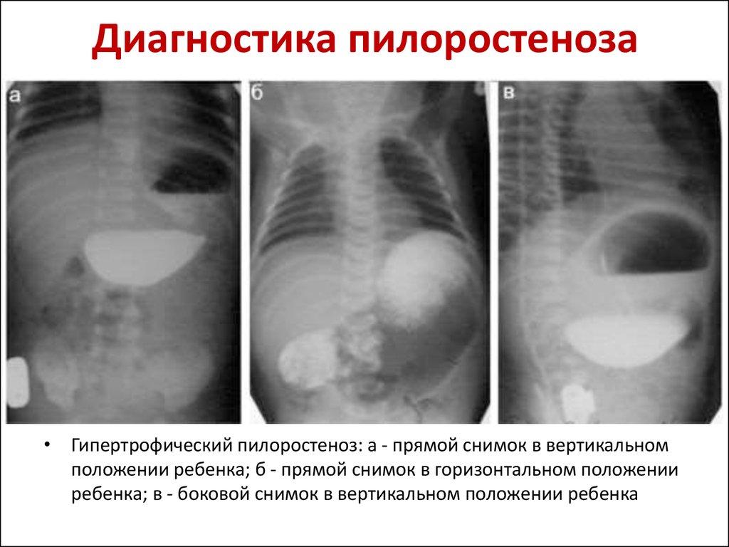 Диагностировать пилоростеноз у новорожденных можно при помощи УЗИ и рентгена