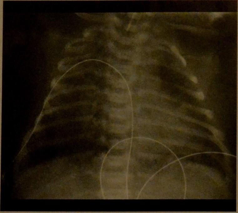 Аспирация меконием у новорожденных определяется при помощи рентгена