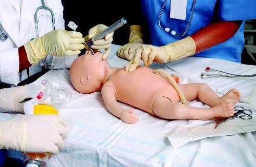 Санация ротовой и носовой полости у новорожденного при аспирации меконием обязательна